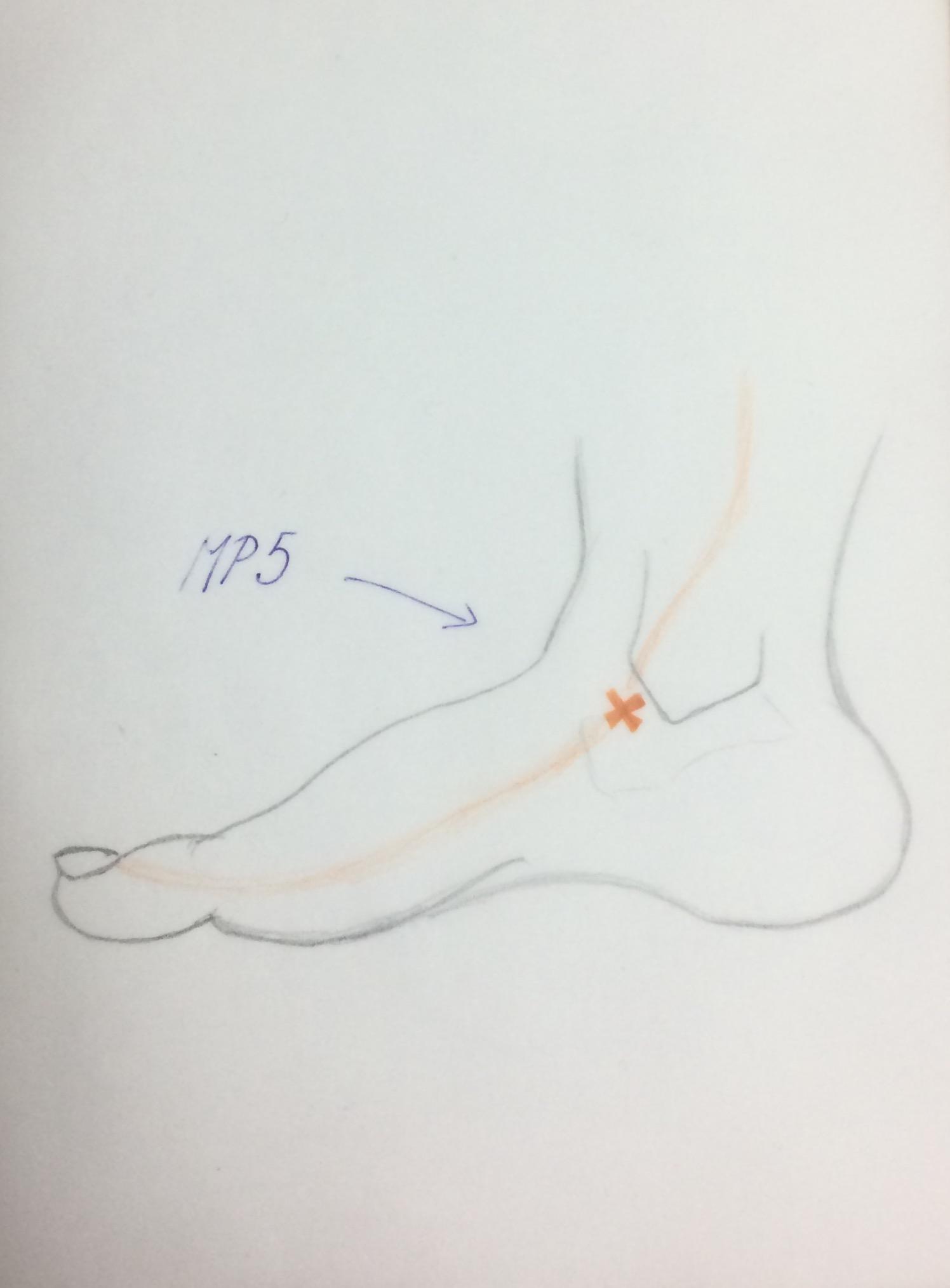 akupunkturpunkte zum abnehmen